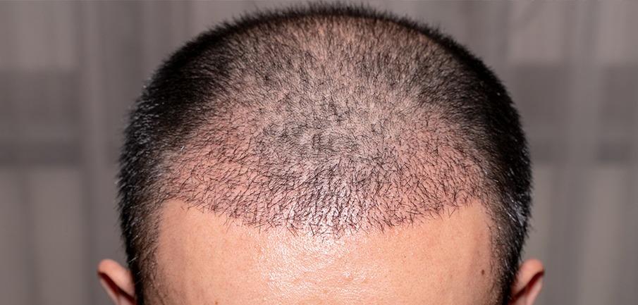 causas caída cabello en hombres