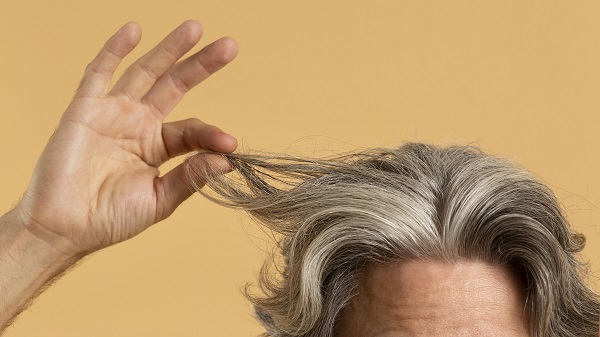 Hair transplant 10 years after