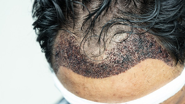 Infected Hair Transplant